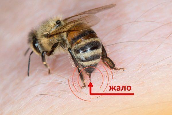 Как удалить жало пчелы