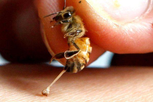 Каки жалит пчела